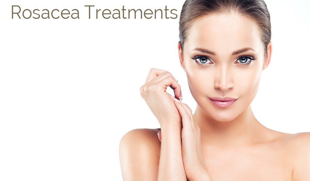 treatments for rosacea